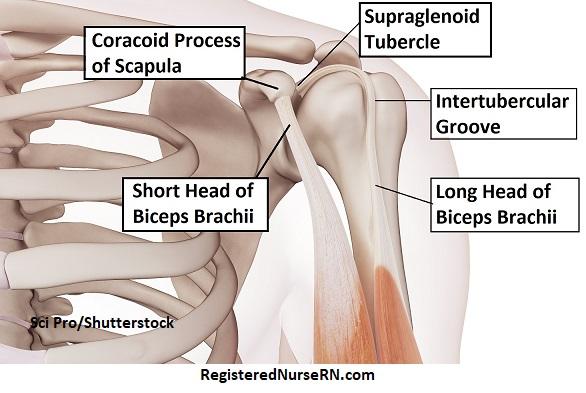 biceps heads, short head originates, coracoid process, long head, supraglenoid tubercle