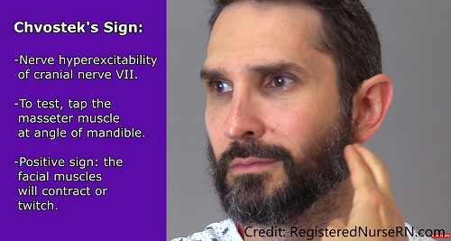 chvostek sign, hypocalcemia, signs symptoms, nursing, electrolytes, nclex