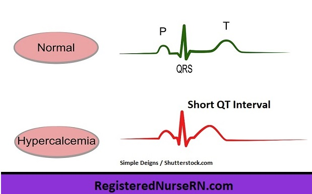 ekg changes hypercalcemia, short qt interval high calcium, nursing, electrolytes