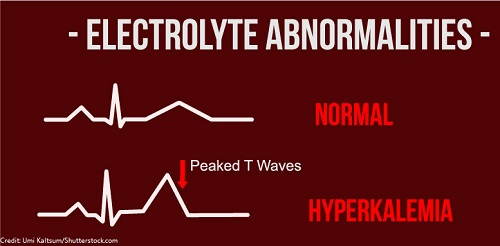hyperkalemia, ekg changes, tall peaked t waves, electrolytes, nursing
