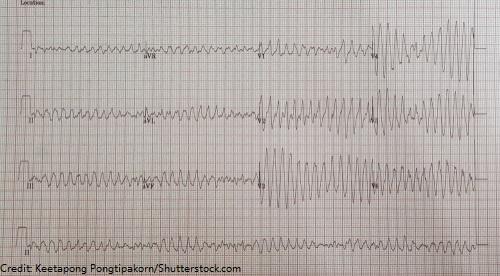 torsades-de-pointes, hypomagnesemia, low magnesium, electrolytes, nursing